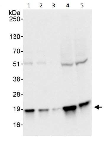 Western blot - Anti-Pin1 antibody (ab245358)