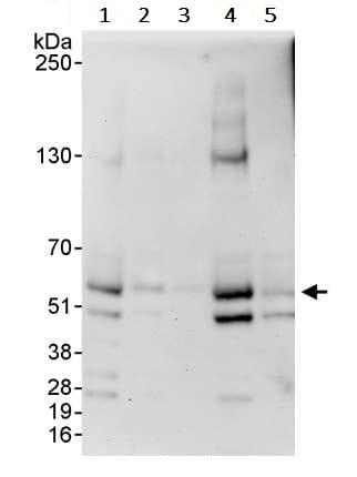 Western blot - Anti-Calcineurin A antibody (ab245360)
