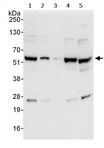 Western blot - Anti-YY1 antibody (ab245365)
