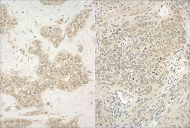 Immunohistochemistry (Formalin/PFA-fixed paraffin-embedded sections) - Anti-YY1 antibody (ab245365)