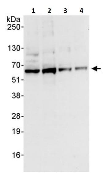 Western blot - Anti-AKT1 antibody (ab245373)