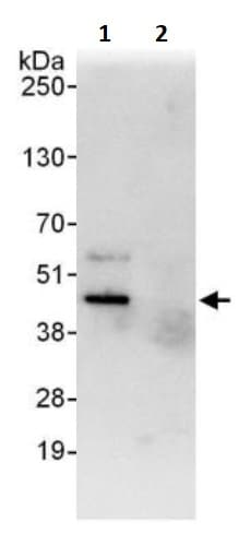 Immunoprecipitation - Anti-Cdk9 antibody (ab245376)