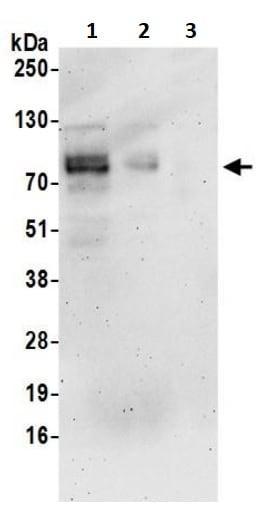 Western blot - Anti-TGF beta Receptor II antibody (ab245382)
