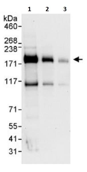 Western blot - Anti-IRS2 antibody (ab245387)