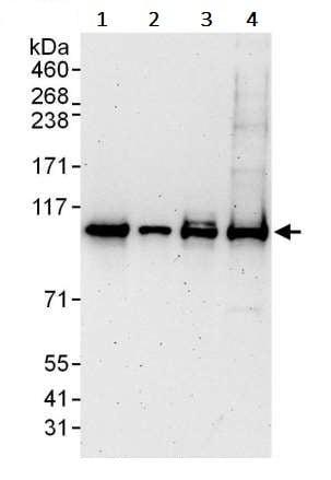Western blot - Anti-STAT2 antibody (ab245394)
