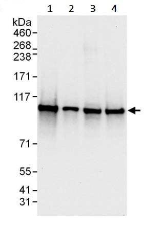 Western blot - Anti-STAT2 antibody (ab245395)