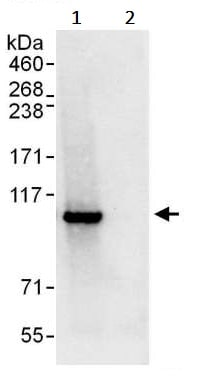 Immunoprecipitation - Anti-STAT2 antibody (ab245395)