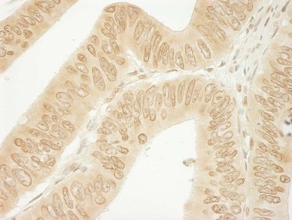 Immunohistochemistry (Formalin/PFA-fixed paraffin-embedded sections) - Anti-delta 1 Catenin/CAS antibody (ab245403)