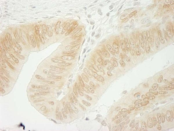 Immunohistochemistry (Formalin/PFA-fixed paraffin-embedded sections) - Anti-delta 1 Catenin/CAS antibody (ab245404)