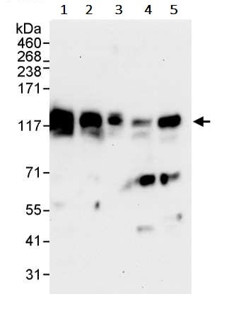 Western blot - Anti-delta 1 Catenin/CAS antibody (ab245404)