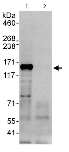 Immunoprecipitation - Anti-HDAC5 antibody (ab245409)