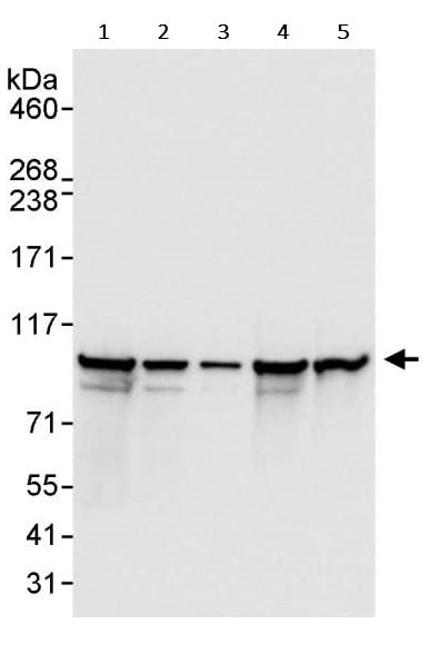 Western blot - Anti-EEF2/Elongation factor 2 antibody (ab245412)