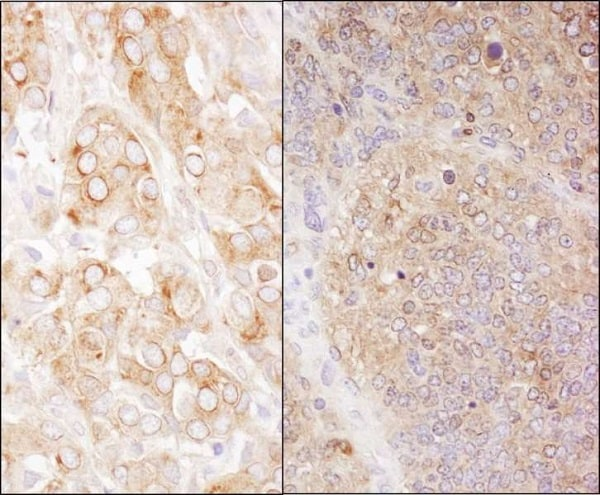 Immunohistochemistry (Formalin/PFA-fixed paraffin-embedded sections) - Anti-EEF2/Elongation factor 2 antibody (ab245412)