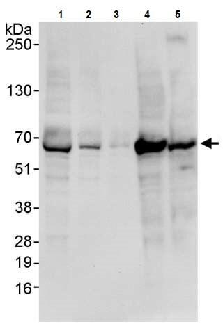 Western blot - Anti-PAK1 antibody (ab245414)
