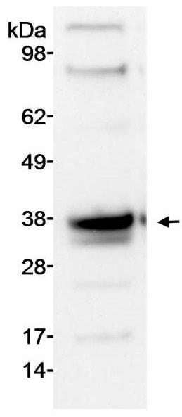 Western blot - Anti-PIM1 antibody (ab245417)