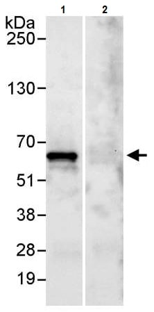 Immunoprecipitation - Anti-PDCD4 antibody (ab245418)