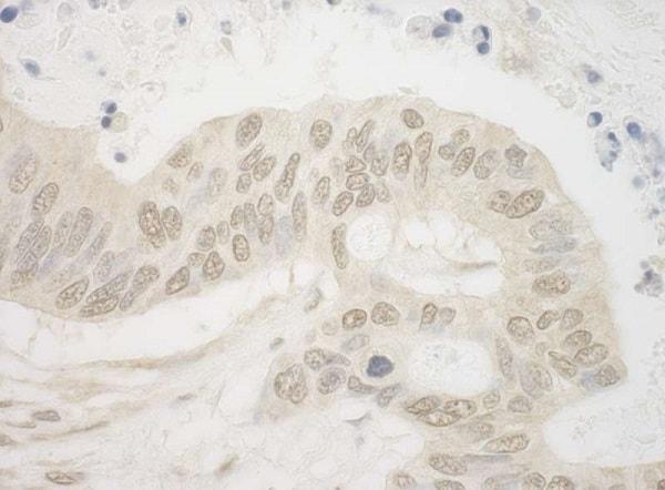 Immunohistochemistry (Formalin/PFA-fixed paraffin-embedded sections) - Anti-HIF1 beta antibody (ab245420)