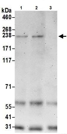 Immunoprecipitation - Anti-BCOR antibody (ab245422)