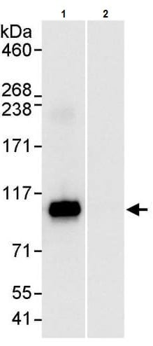 Immunoprecipitation - Anti-SATB2 antibody (ab245424)