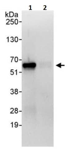 Immunoprecipitation - Anti-SUFU antibody (ab245428)
