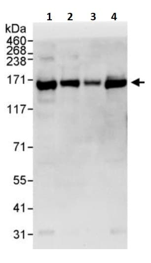 Western blot - Anti-RNA Helicase A antibody (ab245439)