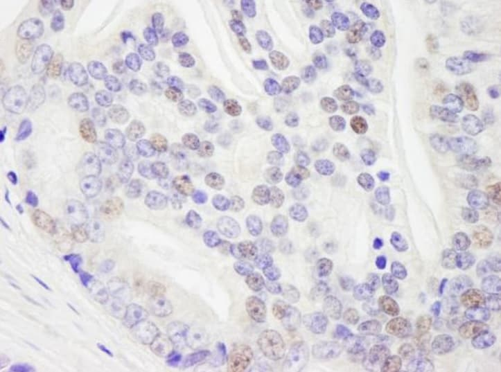 Immunohistochemistry (Formalin/PFA-fixed paraffin-embedded sections) - Anti-RNA Helicase A antibody (ab245439)