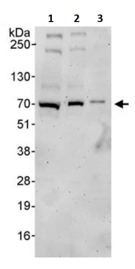 Western blot - Anti-ZAP70 antibody (ab245441)