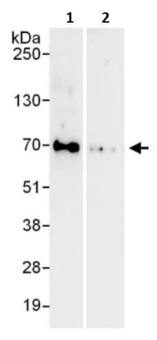 Immunoprecipitation - Anti-FOXC1 antibody (ab245443)