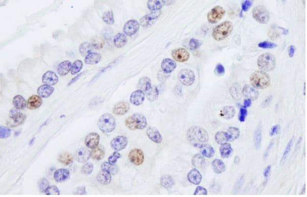 Immunohistochemistry (Formalin/PFA-fixed paraffin-embedded sections) - Anti-nmt55 / p54nrb antibody (ab245464)