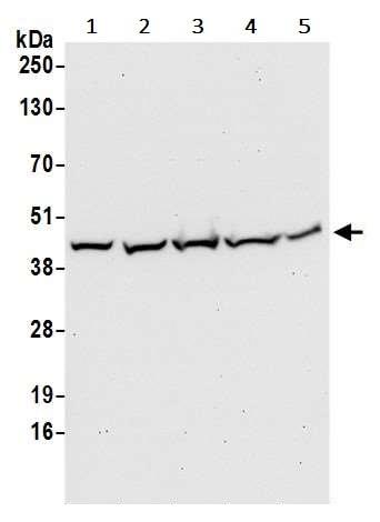 Western blot - Anti-Aldolase antibody (ab245468)