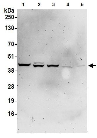 Western blot - Anti-Aldolase antibody (ab245469)