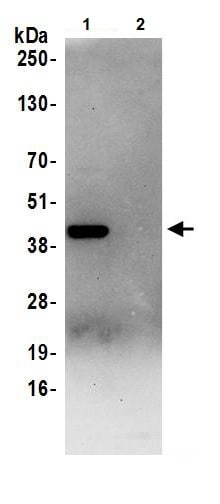 Immunoprecipitation - Anti-Aldolase antibody (ab245469)