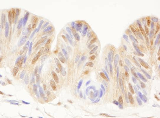 Immunohistochemistry (Formalin/PFA-fixed paraffin-embedded sections) - Anti-Cdc25C antibody (ab245470)
