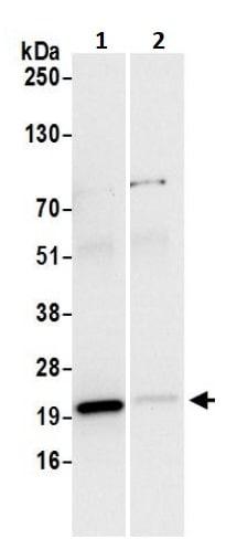 Immunoprecipitation - Anti-MTCO2 antibody (ab245490)