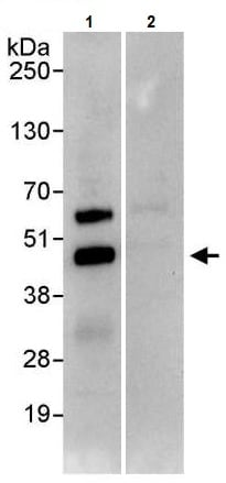 Immunoprecipitation - Anti-JunB antibody (ab245500)