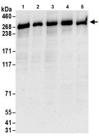 Western blot - Anti-PRPF8/Prp8 antibody (ab245504)