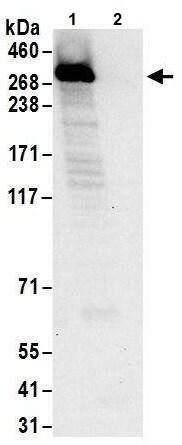 Immunoprecipitation - Anti-PRPF8/Prp8 antibody (ab245505)