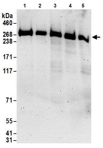 Western blot - Anti-PRPF8/Prp8 antibody (ab245505)
