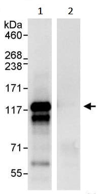 Immunoprecipitation - Anti-NEDD4-2 antibody (ab245522)