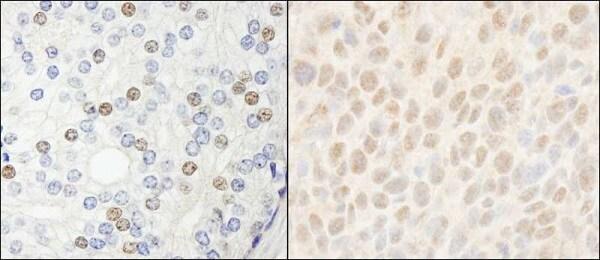 Immunohistochemistry (Formalin/PFA-fixed paraffin-embedded sections) - Anti-HDAC7 antibody (ab245524)