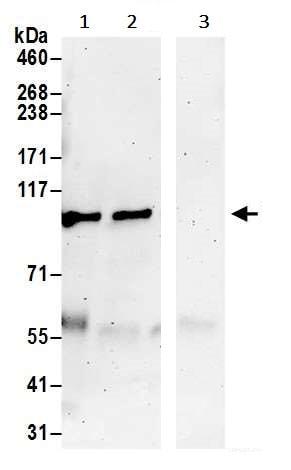 Immunoprecipitation - Anti-PKD2 antibody (ab245527)
