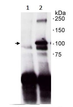 Immunoprecipitation - Anti-PKD2 antibody (ab245528)