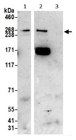 Immunoprecipitation - Anti-ARID2 antibody (ab245529)