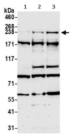 Western blot - Anti-ARID2 antibody (ab245530)