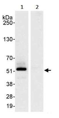 Immunoprecipitation - Anti-PTRF antibody (ab245535)