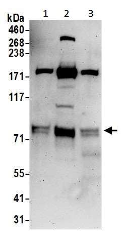 Western blot - Anti-TNIP1 antibody (ab245536)