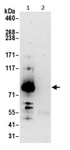 Immunoprecipitation - Anti-XPB antibody (ab245538)