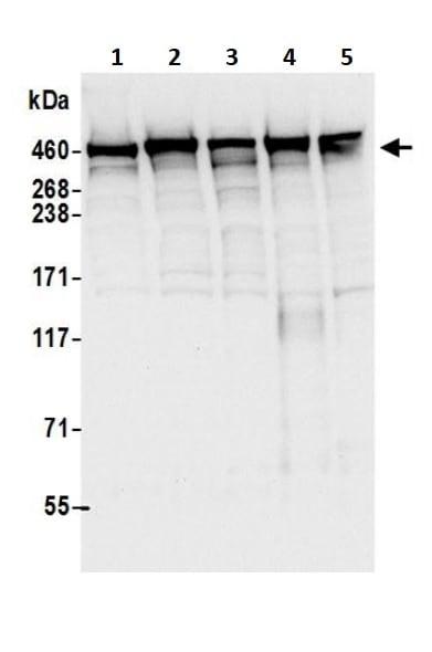 Western blot - Anti-DYNC1H1 antibody (ab245554)