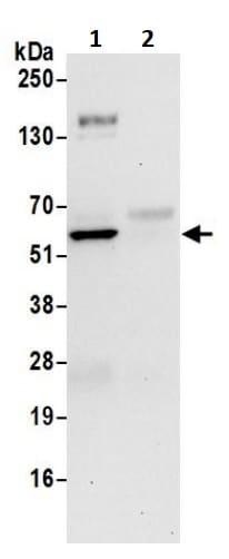 Immunoprecipitation - Anti-TIP49A antibody (ab245557)