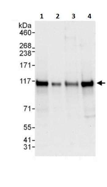 Western blot - Anti-Ctip1/BCL-11A antibody (ab245558)